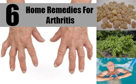 6 home remedies for arthritis treatments cure for