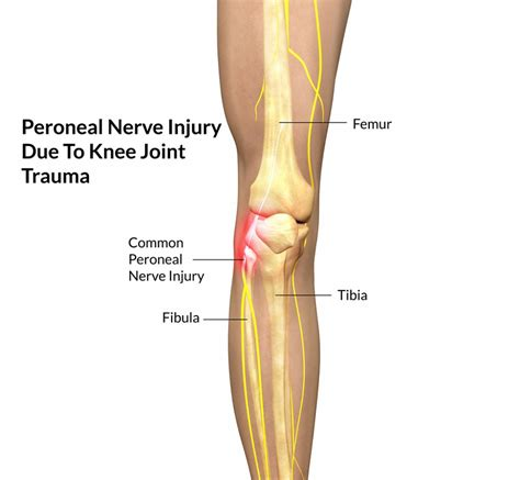 human knee diagram diagram human knee image collections how to guide and
