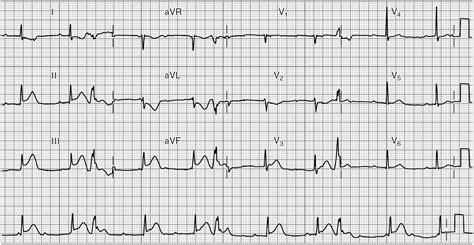 heart ecg pattern ekg acute myocardial infarction patterns brilliant