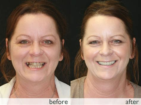 A Facelift For Your Teeth by Smile Transformations