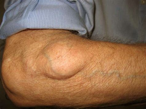 lipoma pictures lipoma pictures causes removal symptoms treatment