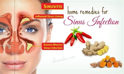 30 best home remedies for sinus infection in adults