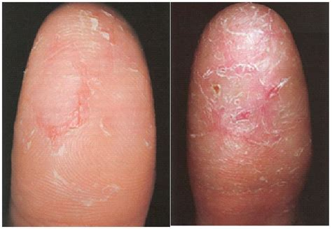 Can Tums Cause Yellow Stool by Finger Eczema Causes Dorothee Padraig South West Skin
