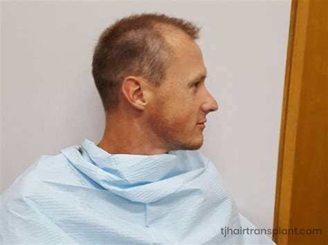 hair transplants in tj reviews hair transplant patient reviews testimonials tj hair