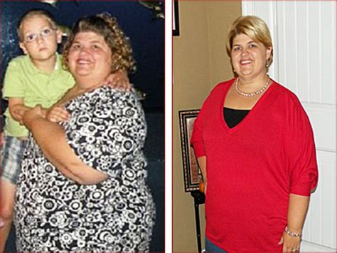 weight loss surgery my gastric band nearly killed me susie lap band surgery palmyra surgical gastric band