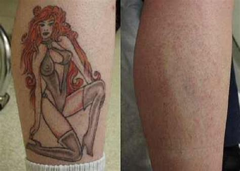 tattoo removal no laser laser removal results pictures fashion gallery