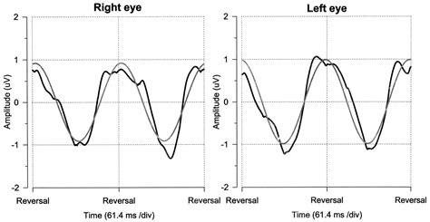 pattern reversal glaucoma pattern electroretinogram abnormality and glaucoma