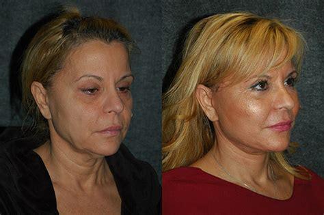 mini face lift new york facial plastic surgery mini face lift face lift techniques face lift surgery