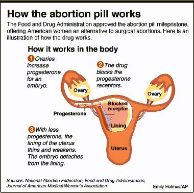 process of abortion driverlayer search engine