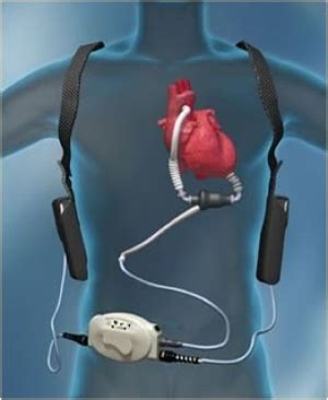 Nephron Power: Topic Discussion: AKI following LVAD Lvad Clinic