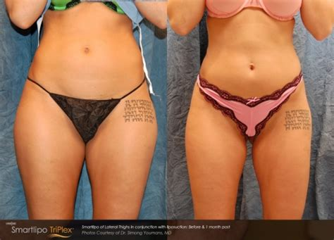 lipo light vs coolsculpting smartlipo before and after photos laser liposuction