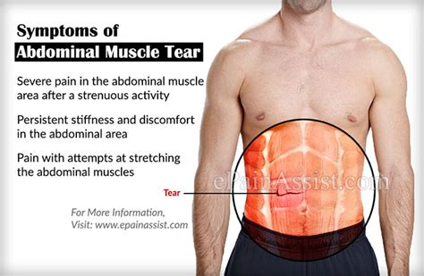 abdominal tear causes symptoms treatment recovery exercise