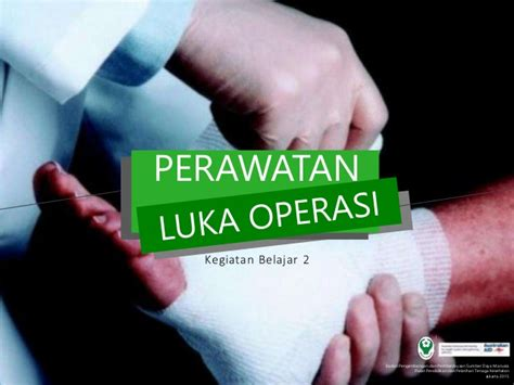 Lu Operasi kb 2 perawatan luka operasi