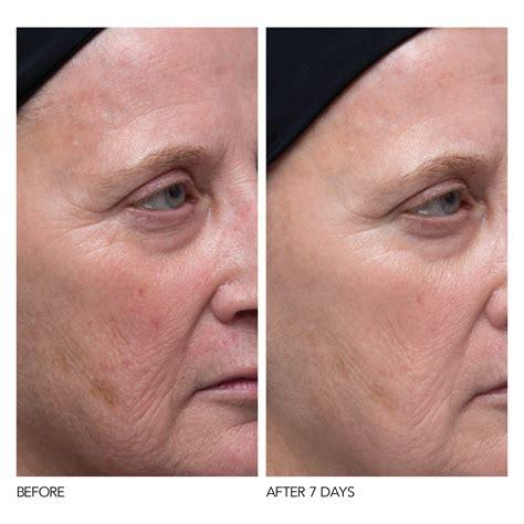 Serum Vitamin C With Collagen c collagen brighten firm vitamin c serum dr dennis
