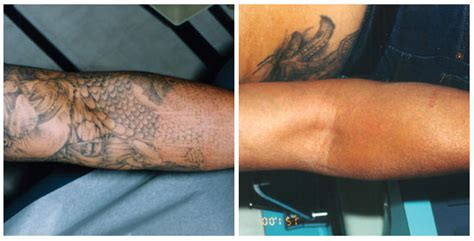 laser tattoo removal near me laser removal by south coast medspa 877 650 scms