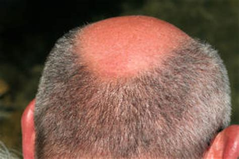haarausfall durch schuppen fettige haare richtig behandeln und vorbeugen