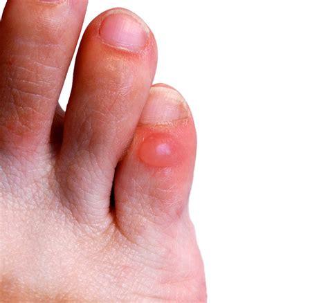 Common Foot Problems by Common Foot Problems
