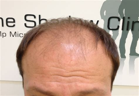 male pattern hair loss cure 2015 treatments for male pattern baldness male pattern hair
