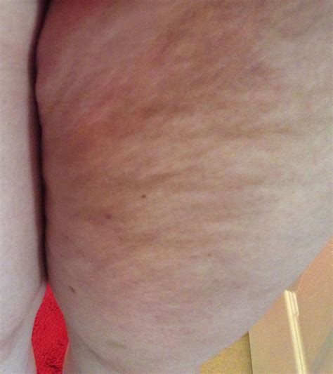mid 30s cellulite started mid 30 year old female thigh cellulite robelyn labs