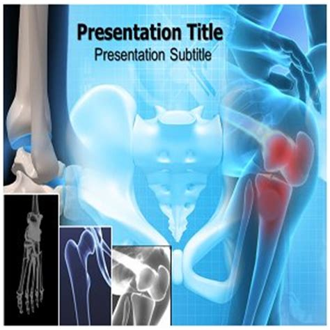 bone powerpoint template stage 4 bone cancer stage 4 bone cancer