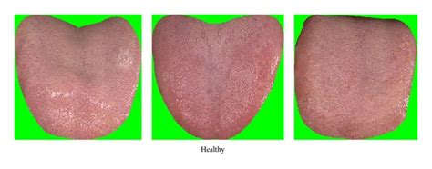 healthy tongue color healthy tongue color images