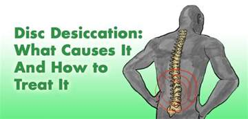 Spine Cushion Disc Desiccation Cause Amp Treatment Of Desiccated Discs