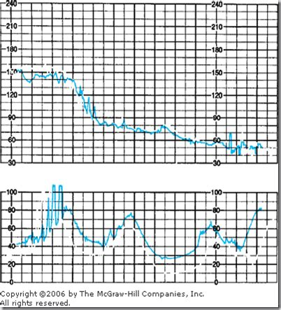 pattern heart rate fetal heart rate patterns 1000 free patterns
