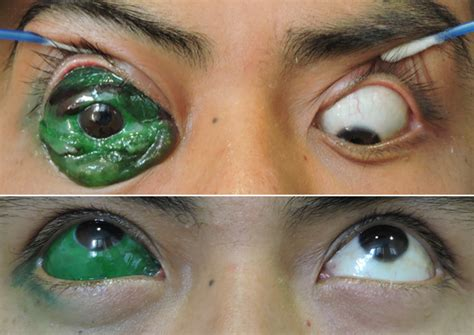eyeball tattoo gone wrong eyeball wrong www pixshark images