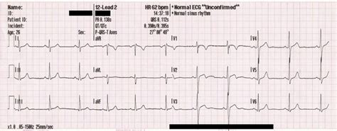 ecg pattern meaning ekg definition what is