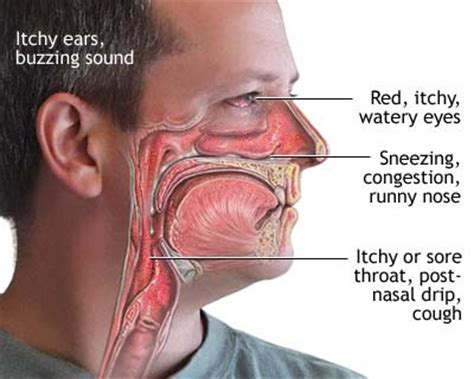 itchy throat causes treatment allergies remedy cough