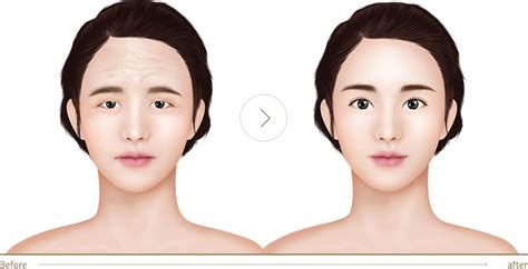 eyebrow lift korea endoscopic forehead lift for removing wrinkles jk
