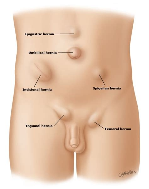 robotic surgery for abdominal wall hernia repair a manual of best practices books what are hernias hernia surgery in dubai