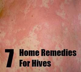hives home remedy 7 home remedies for hives treatments cure for