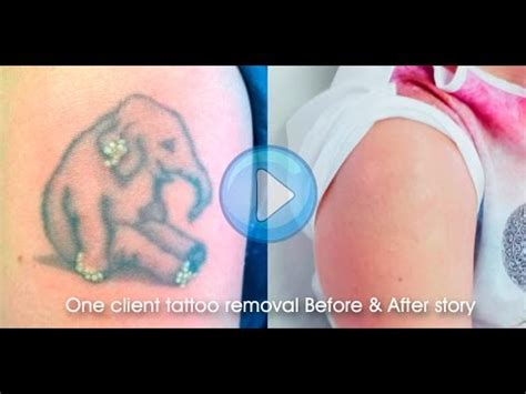 stages of tattoo removal laser removal before after results 8 stage