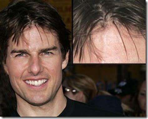 hair plug versus transplant celebrity hollywood hair transplant celebrities hair transplant info