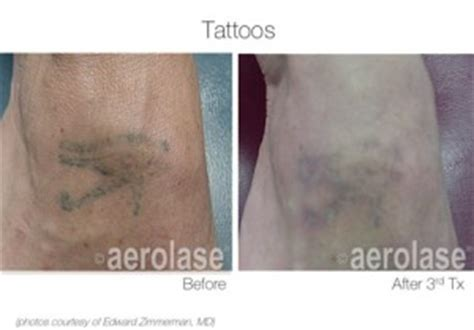tattoo removal maine before after pictures maine laser clinic