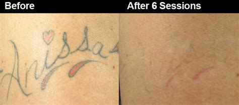 tattoo removal yag laser reasons to get rid of that unwanted tattoo wifh