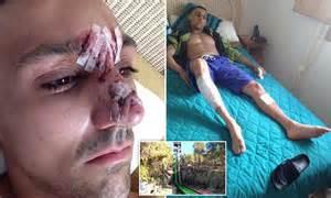jamie norman suffered scarring  accident  benidorm