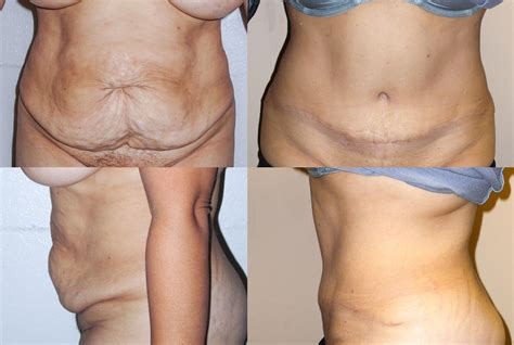 tummy tuck issues liposuction before and after