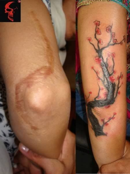 will insurance cover tummy tuck after c section 1000 ideas about scar cover tattoo on pinterest cover
