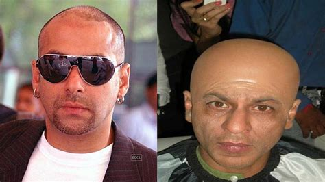 akshay khanna hair transplate 10 bollywood stars who underwent for hair transplant
