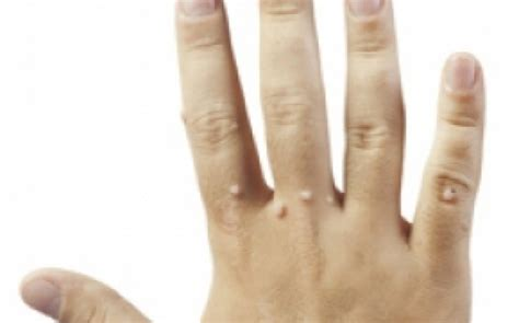 virusul papiloma uman generalitati negi veruci clasificare si tratament