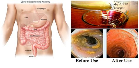 Should You Cleanse And Detox Your Colon by 10 Signs That You Need To Cleanse Your Colon Immediately