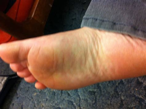 How Do You Get Planters Warts On Your by If You Can T Get Rid Of Plantar Warts Eat More Garlic In
