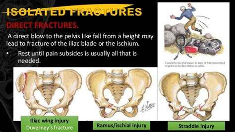 open book pelvic fracture picture pelvic fracture