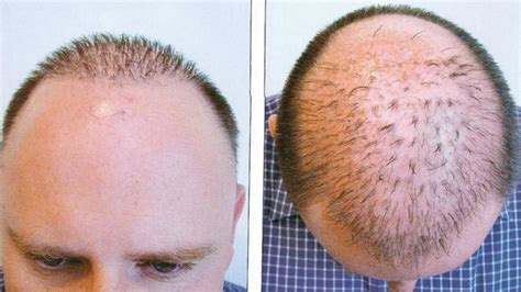 30000 hair graft cost hair transplant market powerful evolution by key vendors