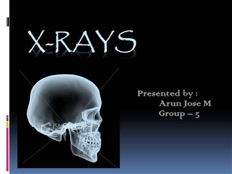 x rays authorstream
