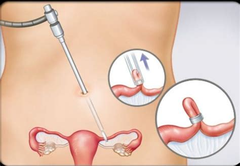 tying tubes during c section tubal ligation tubectomy methods reversal fertility