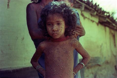 searching for sitala mata eradicating smallpox in india books last smallpox viruses to be destroyed in at least 5 years