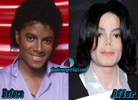 what was wrong with michael jackson michael jackson plastic surgery gone wrong http
